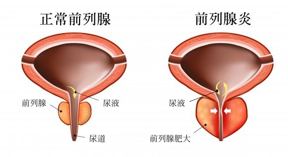 [泌尿科疾病] 慢性無菌性前列腺炎