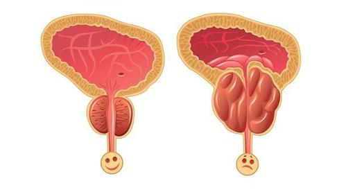 良性前列腺腫大 病徵