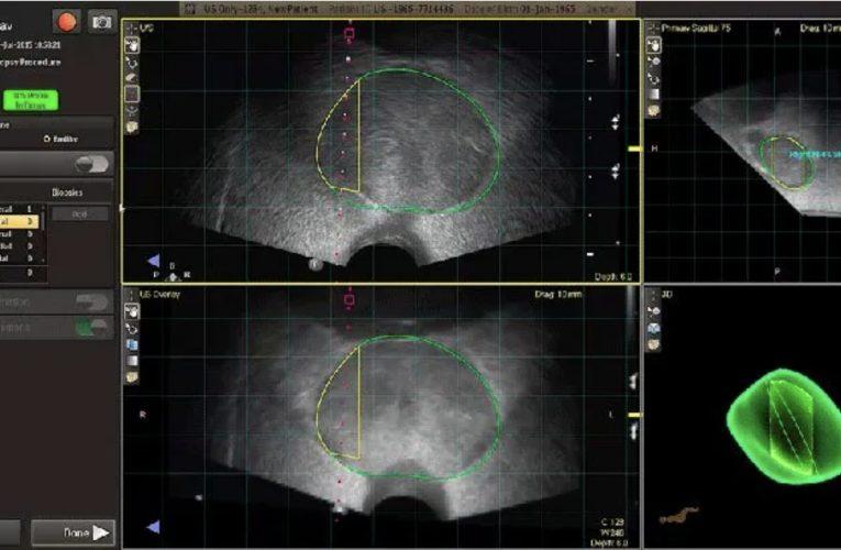 [香港泌尿科診所] 前列腺活檢的替代方法