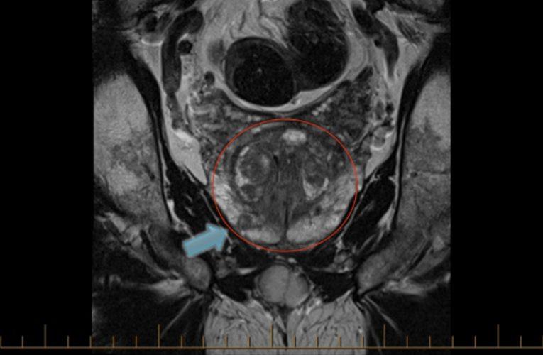 多參數MRI –改變前列腺癌診斷的面貌