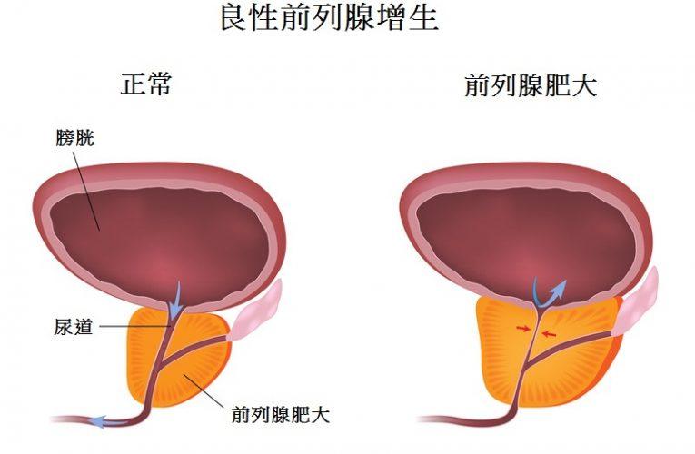 前列腺問題 / 癌症專家